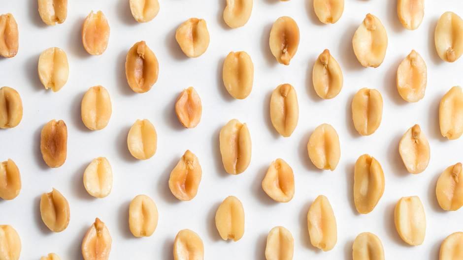 Erdnussallergiker bekommt allergischen Schock – ohne je eine Erdnuss gegessen zu haben